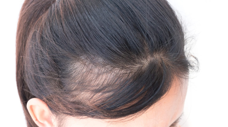 Treat thinning hair - Revive Medical Spa, LLC