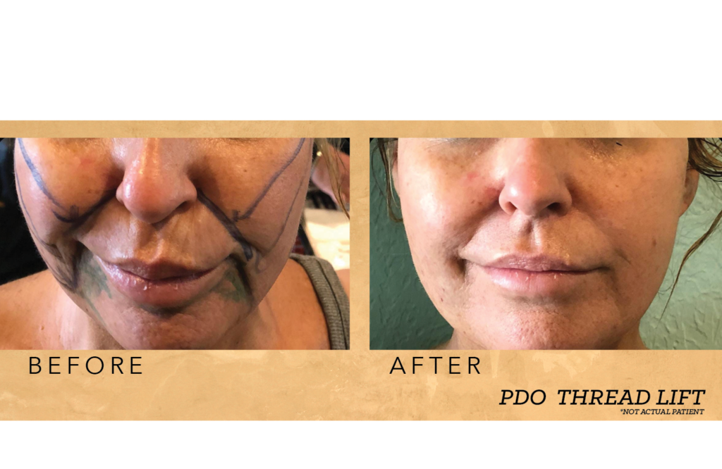 Non-Surgical Lift Rejuvenation : PDO Thread Lift