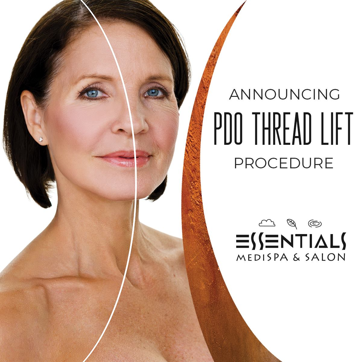 PDO Thread Lifts: an Exciting New Service Offered at